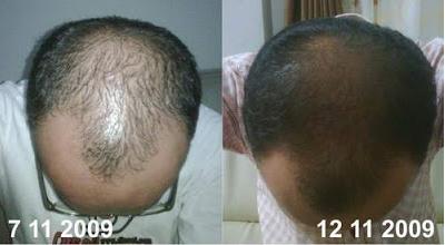 результаты применения средств Nutriol от Nu Skin для восстановления волос