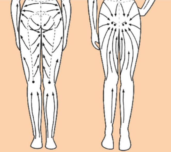 антицеллюлитный массаж с Galvanic Body Spa