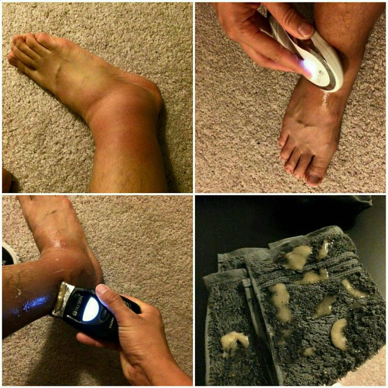 лечение после укуса насекомых